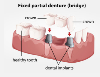 fixed-partial-denture