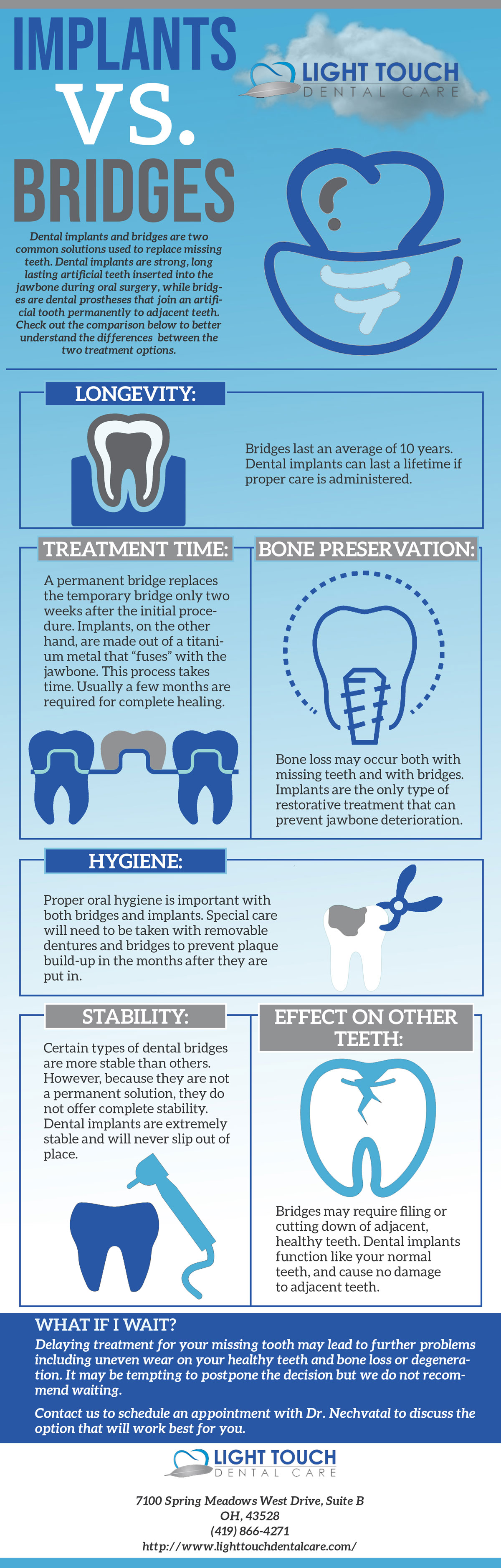 Dental Implants vs Bridges